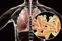 Pulmones con enfermedad del legionario y primer plano de la bacteria Legionella pneumophila, ilustración conceptual . - foto de stock