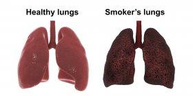 Сравнение здоровых и курильщиков легких, цифровая иллюстрация . — стоковое фото