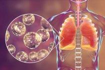 Silueta humana con pulmones infectados con blastomicosis pulmonar y primer plano de partículas de hongos Blastomyces dermatitidis . - foto de stock