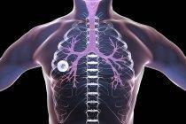 Волокнистый кавернозный туберкулез легких полость в правом легком с правильным форматом волокнистого слоя. — стоковое фото