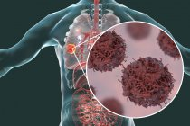 Цифровая иллюстрация раковой опухоли в легких и крупным планом раковых клеток легких . — стоковое фото