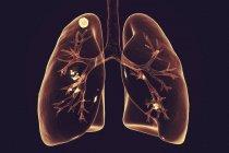 Ilustración digital de ganglio sólido en pulmón derecho cerca del ápice pulmonar, mientras que la infección tuberculosa secundaria . - foto de stock