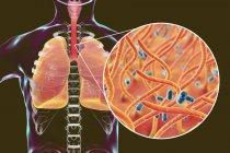 Tosse contagiosa malattia polmonare contagiosa e primo piano dei batteri Bordetella pertosse . — Foto stock