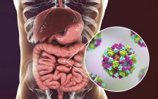 Norovirus infection in small intestine, digital illustration. — Stock Photo