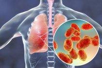 Neumonía pulmonar y primer plano de la bacteria Haemophilus influenzae, ilustración digital . - foto de stock