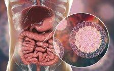 Rotavirus particles infecting human intestine, digital artwork. — Stock Photo
