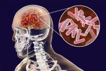 Illustrazione concettuale del cervello con segni di encefalite batterica e primo piano dei batteri . — Foto stock