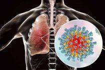 Силует з пневмонією легенів викликані вірус кору, концептуальні ілюстрації. — стокове фото
