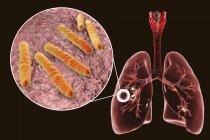 Tuberculose pulmonar fibrocavernosa e close-up da bactéria Mycobacterium tuberculosis . — Fotografia de Stock