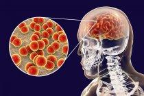 Neisseria meningitidis мозг инфекции, цифровой иллюстрации. — стоковое фото