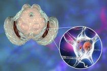 Digital illustration of degenerated substantia nigra in brain while Parkinsons disease. — Stock Photo