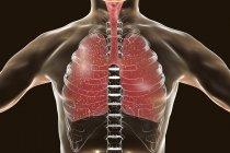 Милиарный туберкулез в человеческих легких, цифровой иллюстрации. — стоковое фото