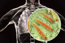 Secondary tuberculosis lungs infection and close-up of Mycobacterium tuberculosis bacteria. — Stock Photo