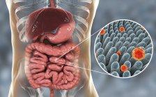 Illustrazione digitale dell'intestino e primo piano delle particelle virali dell'epatite A . — Foto stock