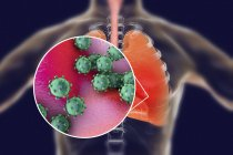 Human lungs with viral pneumonia and close-up of virions. — Stock Photo