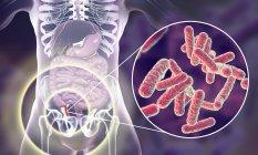 Illustrazione dell'appendice umana rossa e infiammata e primo piano degli agenti causali batterici dell'appendicite . — Foto stock