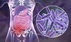 Ilustración del apéndice humano rojo e inflamado y primer plano de los agentes causantes de las bacterias de la apendicitis . - foto de stock