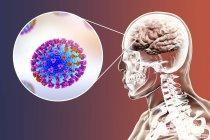 Ilustración digital de la complicación de la infección gripal, como la encefalitis y el primer plano de las partículas víricas . - foto de stock