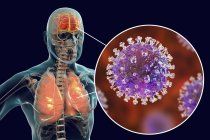 Encefalite e polmonite causate dal virus zoonotico Nipah, illustrazione digitale . — Foto stock