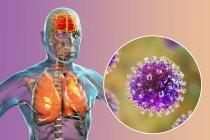 Encefalite e polmonite causate dal virus zoonotico Nipah, illustrazione digitale . — Foto stock