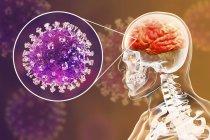 Encéphalite causée par le virus zoonotique Nipah, illustration numérique . — Photo de stock