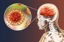 Encefalite causata dal virus zoonotico Nipah, illustrazione digitale . — Foto stock