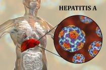 Obras de arte digital da silhueta com inflamação do fígado e close-up do vírus da hepatite A. — Fotografia de Stock
