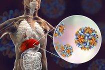 Digitale Illustration der Silhouette mit Leberentzündung und Nahaufnahme des Hepatitis-B-Virus. — Stockfoto