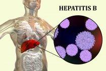 Ilustración digital de la silueta con inflamación hepática y primer plano del virus de la hepatitis B . - foto de stock
