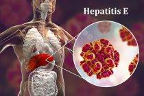 Цифровий ілюстрація силует з запалення печінки і макро вірусу гепатиту E. — стокове фото