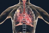 Aspergilloma болезнь легких, цифровой иллюстрации. — стоковое фото