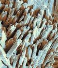 Micrografía electrónica de barrido de color abstracto de superficie cristalina de cálculos biliares fracturados . - foto de stock
