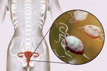 Illustrazione del sistema riproduttivo femminile e del parassita Trichomonas vaginalis che causa trichomoniasi . — Foto stock