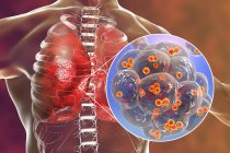 Illustration of Staphylococcus aureus bacteria inside alveoli of lungs causing pneumonia. — Stock Photo