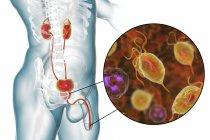 Ilustración del sistema urinario masculino y parásito Trichomonas vaginalis causante de tricomoniasis . - foto de stock