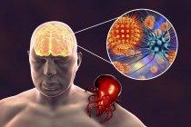 Silueta humana y encefalitis transmitida por garrapatas, ilustración digital . - foto de stock