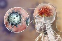 Ilustración digital conceptual de la encefalitis causada por el virus varicela zóster . - foto de stock