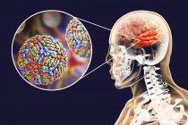Ilustración digital conceptual de la encefalitis causada por el virus del Nilo Occidental . - foto de stock