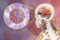 Illustration numérique conceptuelle de l'encéphalite causée par le virus du Nil occidental . — Photo de stock