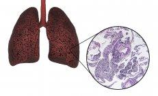 Poumons de fumeurs, illustration numérique et micrographie lumineuse sur fond blanc . — Photo de stock