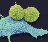 Micrographie électronique à balayage coloré des cellules cancéreuses du sein . — Photo de stock