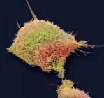 Micrógrafo electrónico de barrido coloreado de células cancerosas cultivadas del cuello uterino humano que muestra numerosas microvellosidades . - foto de stock
