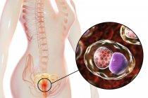 Illustration numérique du système reproducteur féminin et de la bactérie Chlamydia trachomatis à l'origine de l'infection à Chlamydia . — Photo de stock