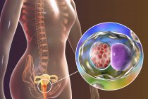 Ilustración digital del sistema reproductor femenino y de la bacteria Chlamydia trachomatis que causa la infección por clamidia . - foto de stock