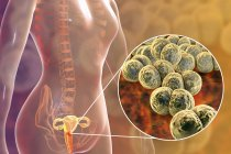 Close-up of bacterial gonorrhoea infection in female body, digital illustration. — Stock Photo
