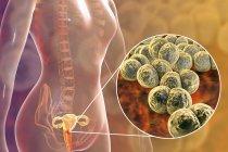 Закри бактеріальних гонореї інфекції в жіноче тіло, цифрова ілюстрація. — стокове фото