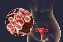 Ilustración digital que muestra vaginitis causada por hongo Candida albicans y primer plano de las células de levadura . - foto de stock