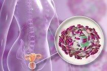 Appareil reproducteur femelle et bactéries Gardnerella vaginalis attachées aux cellules épithéliales vaginales causant une vaginose bactérienne, illustration numérique . — Photo de stock