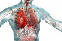 Polmonite condizione infiammatoria dei polmoni, illustrazione digitale . — Foto stock