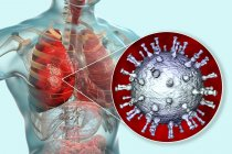 Polmonite causata dal virus della varicella zoster, illustrazione digitale . — Foto stock